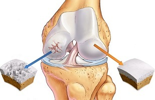 What is osteoarthritis of the knee joint